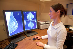 Mammography performed by Montgomery Radiology Associates